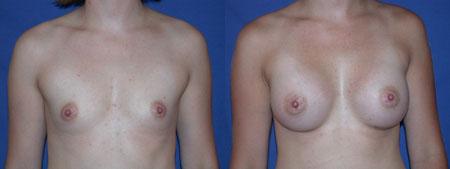 Newport Beach Breast Augmentation Event