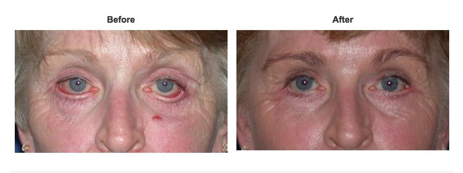Eyelid Surgery Repair Specialist Newport Beach Orange