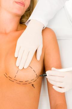 Newport Beach Plastic Surgery Orange County Breast Implants Cost